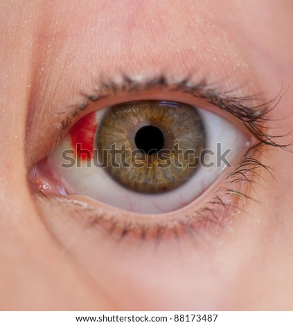 The injured eye of the child with a hypostasis - stock photo