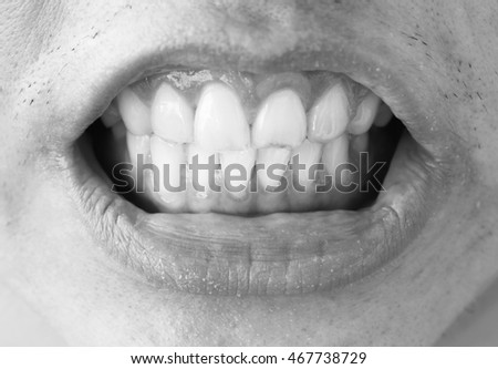 The photo of male teeth represent the dentistry and healthcare concept related idea.