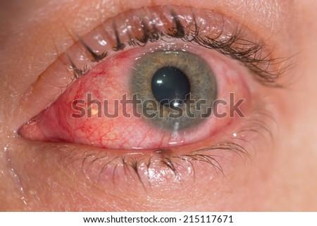 The viral conjunctivitis during eye examination. - stock photo