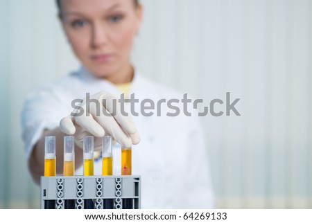 The woman physician behind work in laboratory - stock photo