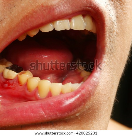 The wound and bleeding at gum in oral cavity scene represent oral care and dentistry concept related idea. - stock photo