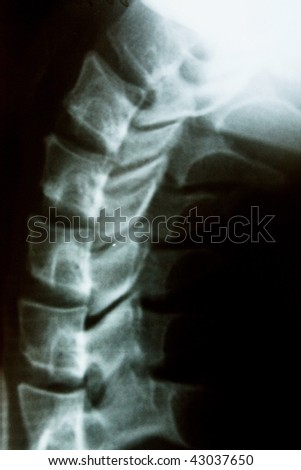 the xray photo of a human neck - stock photo
