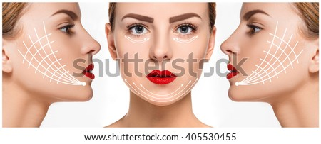 The young female face. Antiaging and thread lifting concept - stock photo
