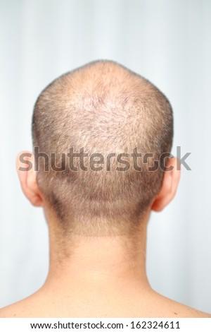 thin hair - stock photo