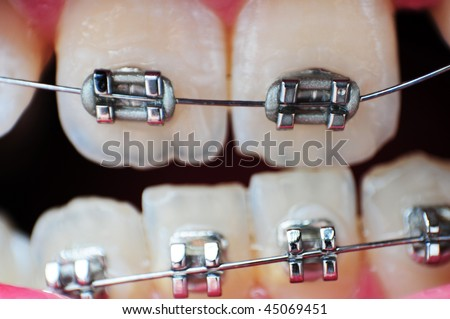 This image is a closeup of crooked unaligned teeth with braces on them. - stock photo