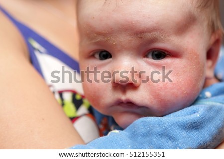 This is eczema on face of newborn