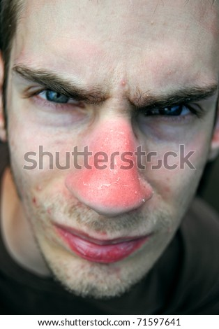 This unfortunate suffering young male has gotten a bad red sunburn on his nose and the red skin is now peeling. - stock photo