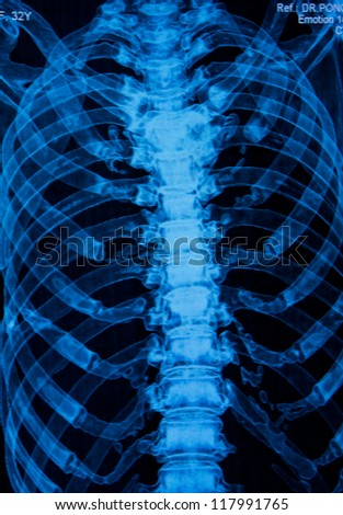 Thoracic spine  X-rays under 3d image - stock photo