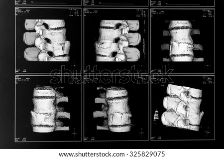 Three dimensional X-Ray picture for the diagnostic of a spinal fracture. The vortex is broken towards to the belly - stock photo