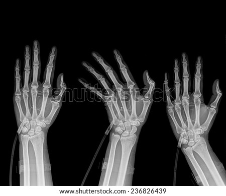 three  hands position on x-ray isolated on black background - stock photo