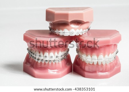 Three model jaws with wire braces stacked, example of dental and orthodontic technology for teeth alignment - stock photo