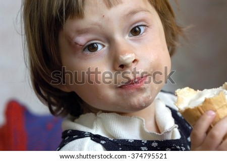 Three year old girl with a broken right eyebrow eating ice cream and sad looking at the camera.