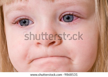 Three Year Old Little Girl With Conjunctivitis (Pink Eye) - stock photo
