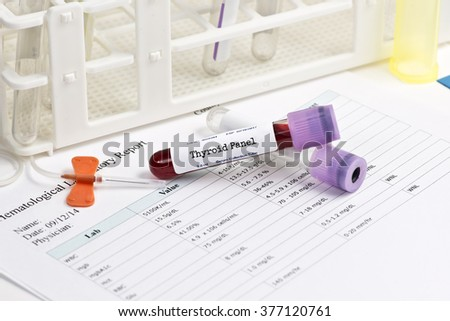Thyroid test panel blood analysis collection tube with supplies.