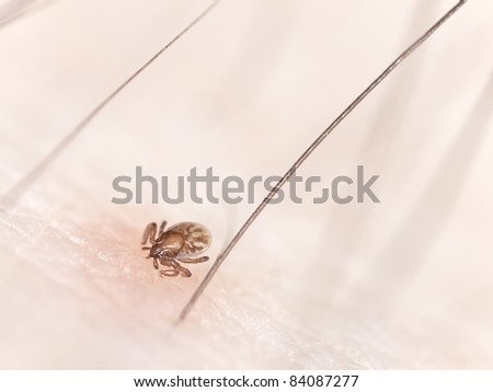 Tick larvae sucking blood from human, extreme close up with high magnification - stock photo