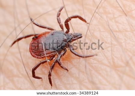 tick on a human skin - stock photo