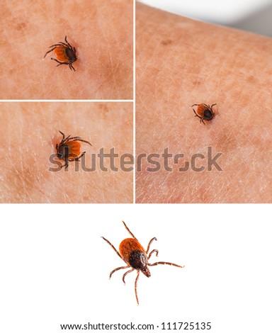 Tick on human skin and one isolated on white - Ixodida - stock photo