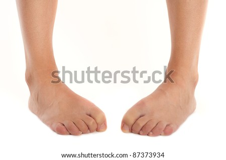 tired female clumsy legs with bent fingers isolated on white