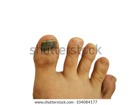 Toe nails with bruise on white background