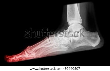 toe pain on x-ray - stock photo