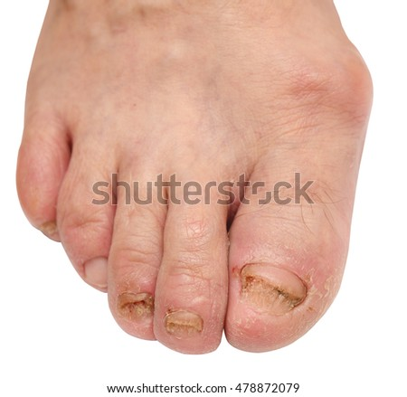 toenail fungus at the peak of the infection