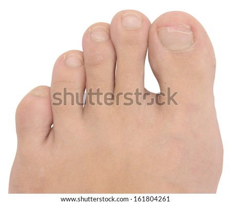 toenail fungus on white - stock photo