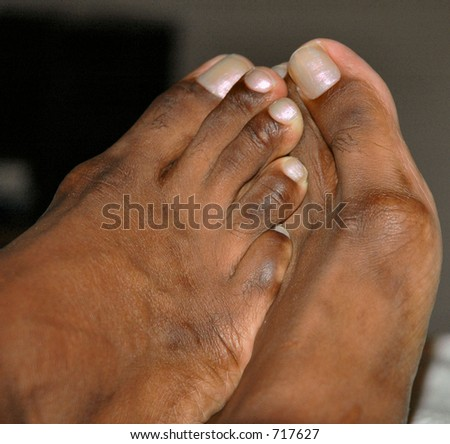 Toes - stock photo