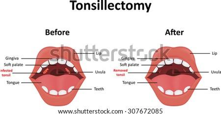 Tonsillectomy - stock photo