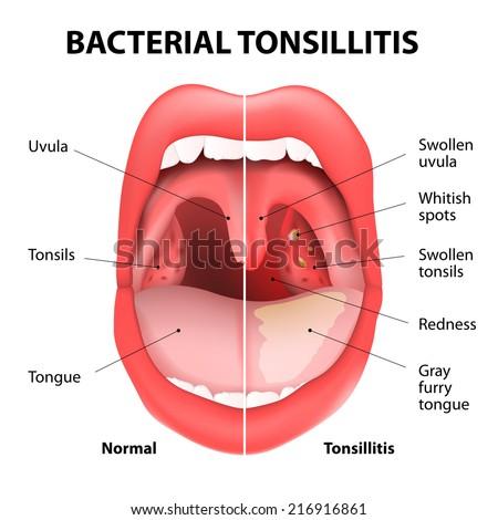 Tonsillitis bacterial - stock photo