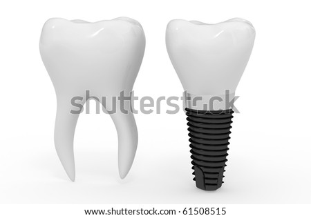 tooth and dental implant - stock photo
