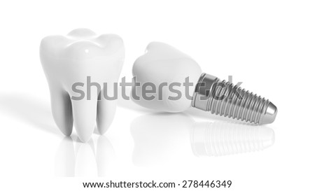Tooth and dental implant isolated on white background - stock photo