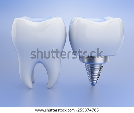 Tooth and dental implant over blue background. 3d render - stock photo