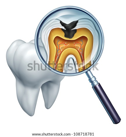 Tooth cavity close up and cavities symbol showing a magnifying glass with a cross section of a tooth anatomy in decay due to bacteria and acids in oral health care showing rotting and disease.
