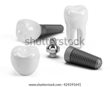 Tooth human implant. 3d render - stock photo