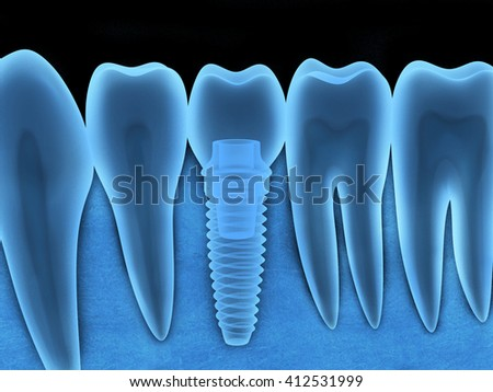 Tooth human implant x-ray (done in 3d, graphics)  - stock photo