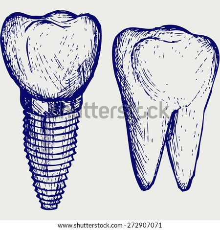 Tooth implant and molar. Doodle style. Raster version - stock photo