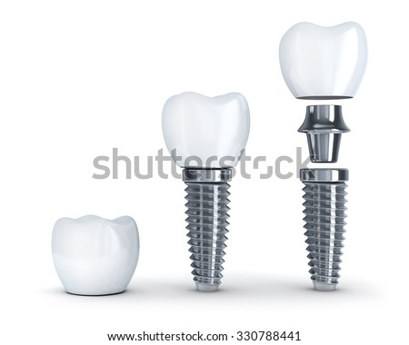 Tooth implant disassembled (done in 3d, isolated) - stock photo