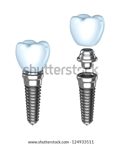 Tooth implants , isolated . - stock photo