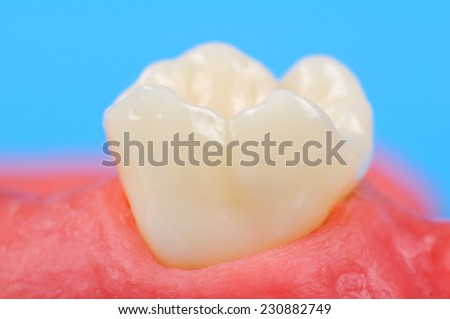 tooth in the gum extra close up - stock photo