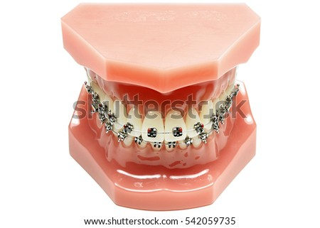 tooth model with metal wired dental braces isolated on white background
