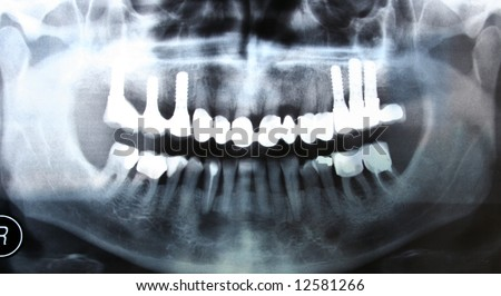 Tooth radiography - stock photo