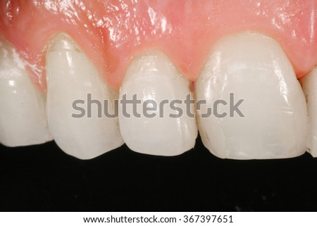 tooth surgery implant  - stock photo