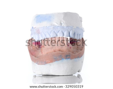 Top and Bottom denture mold,broken tooth placed on white background.