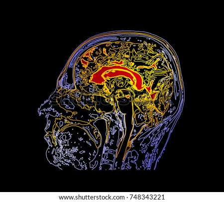 Brain Map Stock Images, Royalty-Free Images & Vectors ...