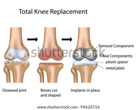 Total knee replacement surgery - stock photo