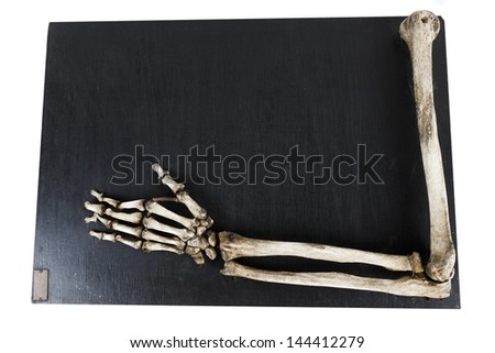 training model with the bones of the human hand - stock photo