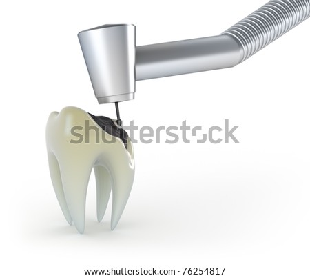 Treatment of a tooth with caries - stock photo