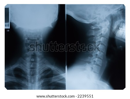 True colour X-Ray film of neck - front and side - stock photo