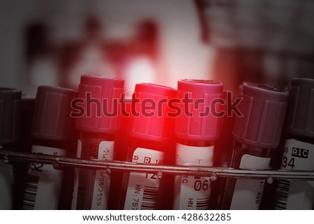 tubes of blood sample for testing [blur and selective focus background] - stock photo