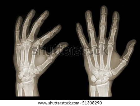 two hands on x-ray isolated on black background - stock photo